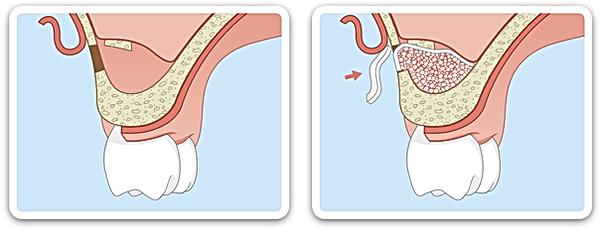 resorba resodont membrana kolagenowa