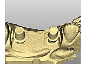 detax implant mask 2.jpg