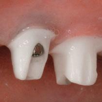 implantlink-forte-Aufbauten