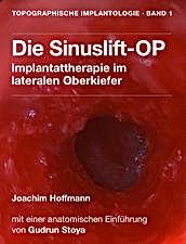 Die Sinuslift-OP App