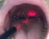 naświetlanie laserem Elexxion Snore 3
