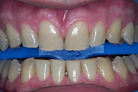preparat do laserowego wybielania zębów