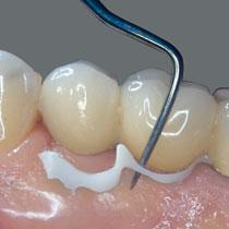 implantlink-1
