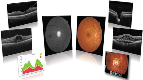 MACULA - patologie retiniche