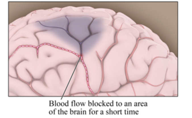 Transient blockage of blood to brain