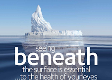 OCT-A2-Seeing-Beneath-the-surface-poster