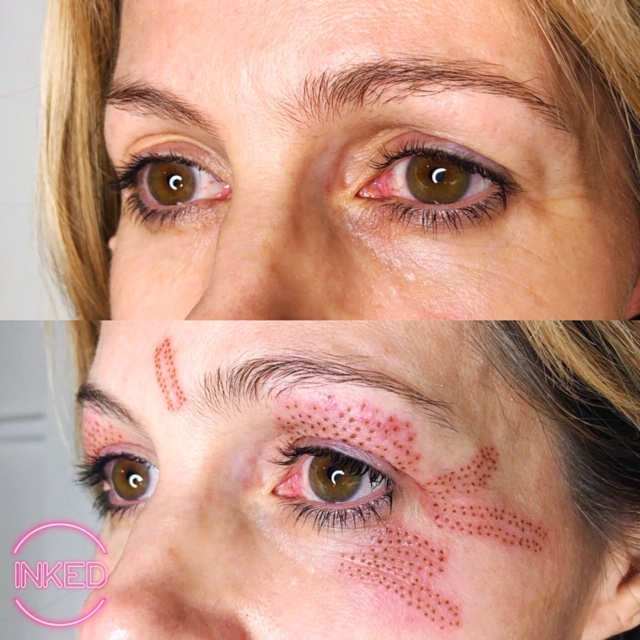 Plasma Skin Tightening on Eyelids