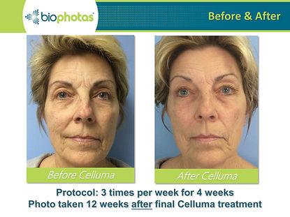 Before-After (11).JPG