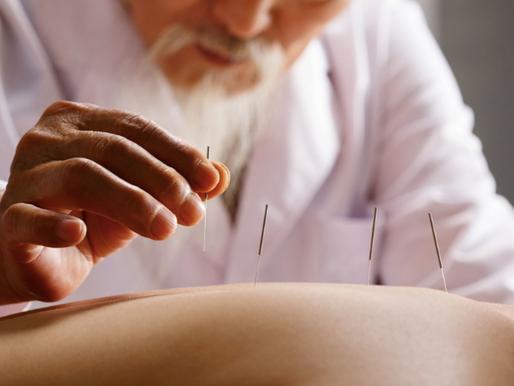 L'acupuncture (针灸 zhēn jiǔ)