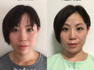 美容鍼灸施術の効果について