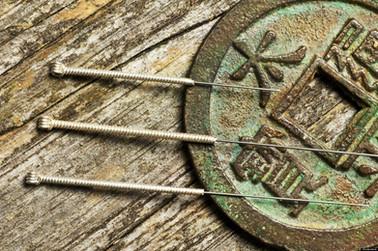 acu-needle.jpg