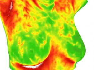 Breast-Thermography-300x225.jpg