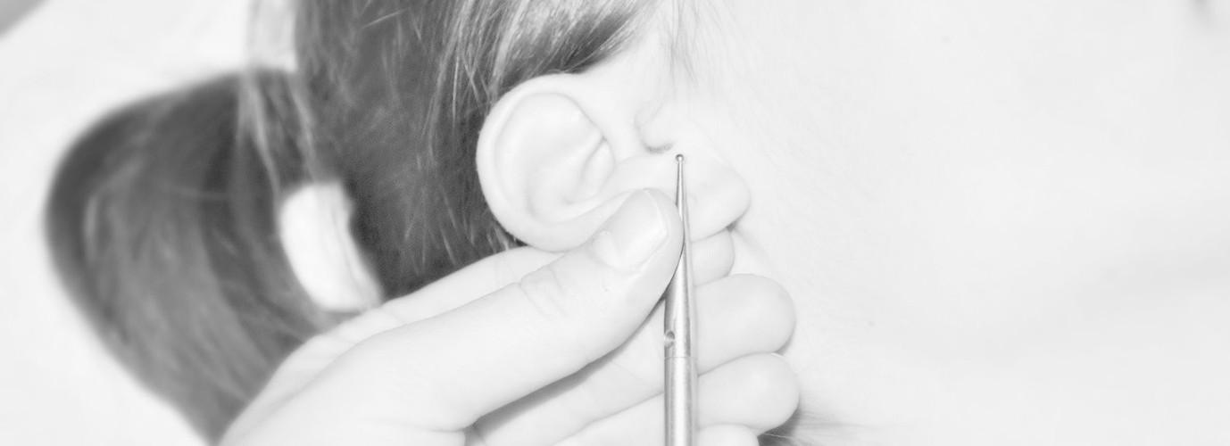 Akupunktur Luzern