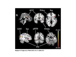 Epigenetic Neuroimiaging