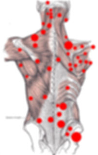 Different Trigger Points on the Back