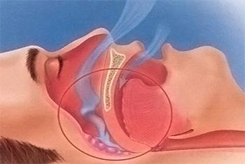 Apnee respiratorie
