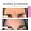 Thumbnail: Wrinkles Scminkles Forehead Smoothing Kit