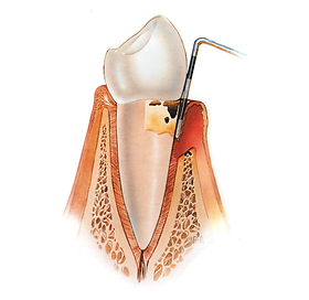 periodontal surgery.png