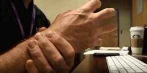 carpal tunnel wrist pain
