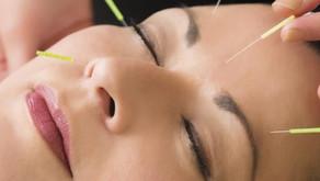 Quais os benefícios da acupuntura?