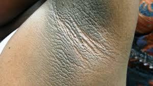 Fierce Skin Lightening Treatment