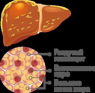 гепатоз.png