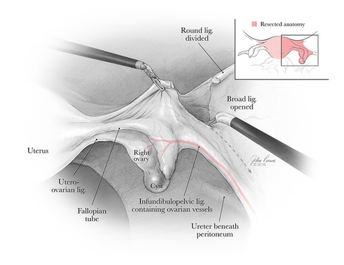 Robot assisted hysterectomy