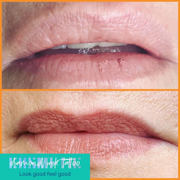 8 Months Healed Lip Blush
