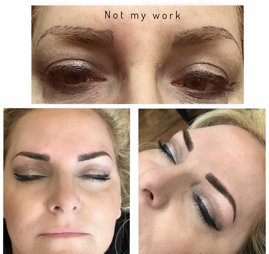 Brow Correction
