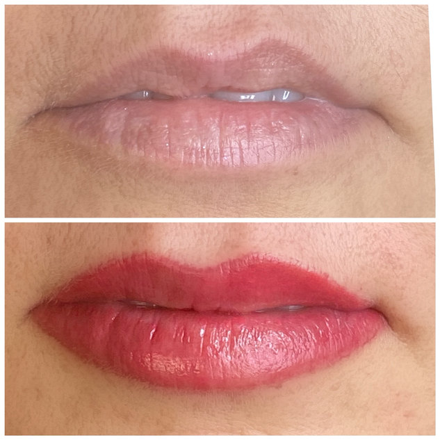 Reshaping the lips!