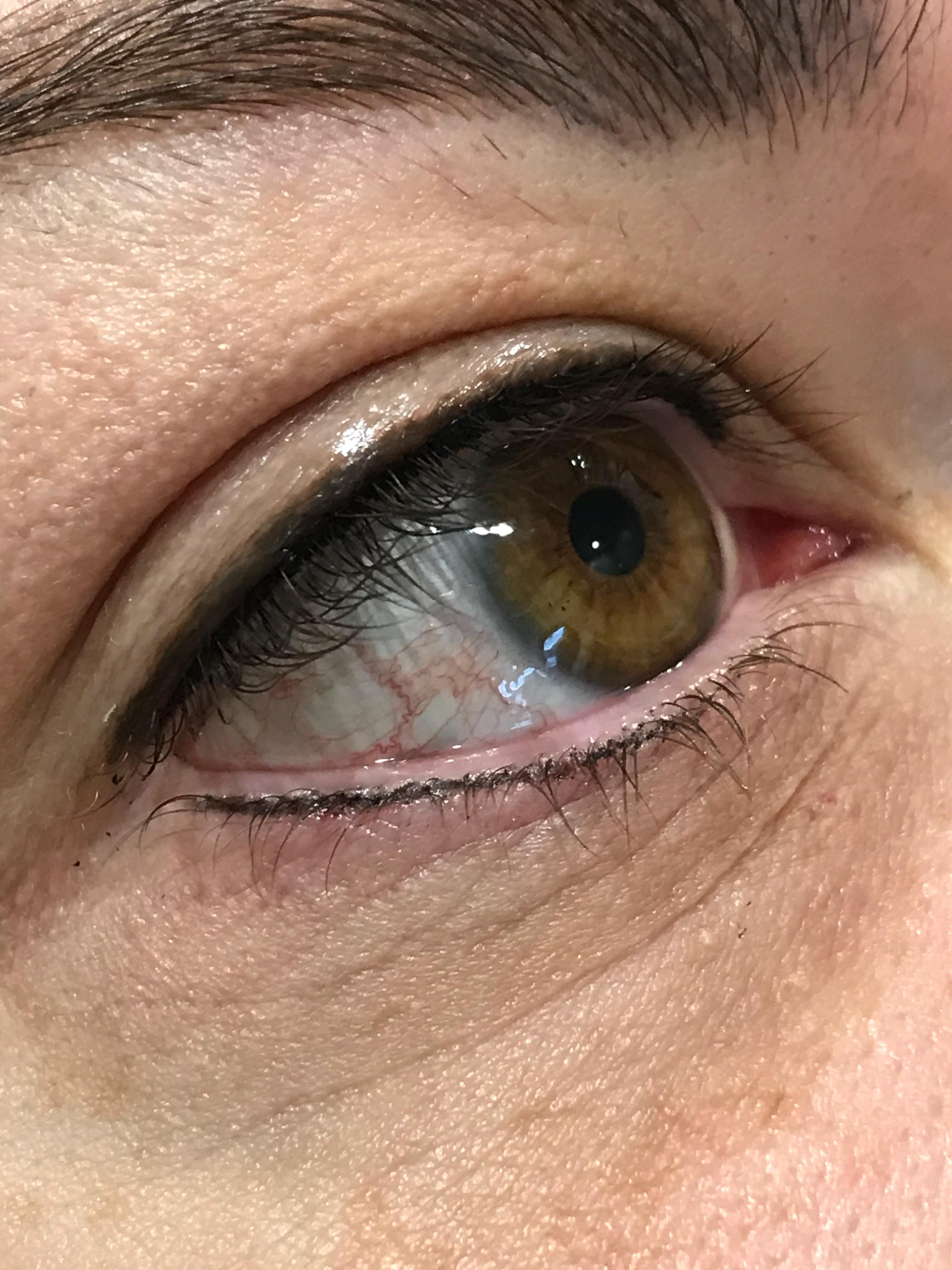 Upper/lower lash enhancement