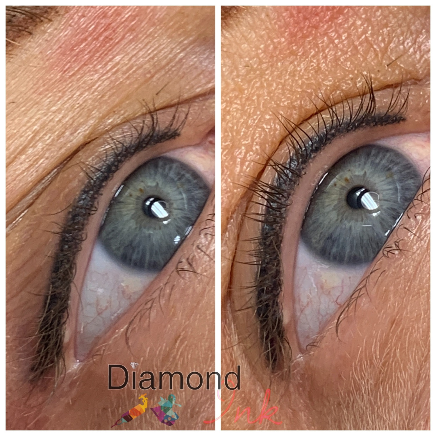 Healed classic liner
