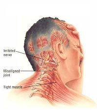 migrene.jpg