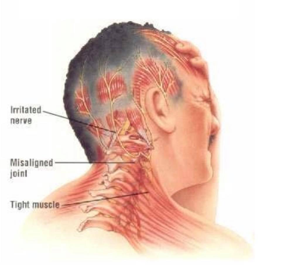 Massasje for hodepine/migrene