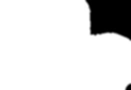 皮秒激光  755波長皮秒 皮秒 Picosecond 去斑 Pico second 2 去斑 皮秒激光 去斑 去疣 淡斑 去斑 去紋 淡斑 脫疣 美白 暗瘡 暗瘡印 去印 色斑 收毛孔 激光去斑 雀斑 太陽斑 老人斑 凹凸洞 蜂巢皮秒 1064激光 嫩膚