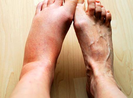 The Basics on Inflammation