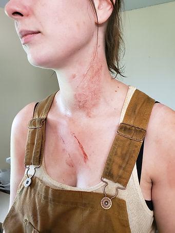 Burn Scar and Sunburn.jpg
