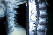 invasive medical treatment