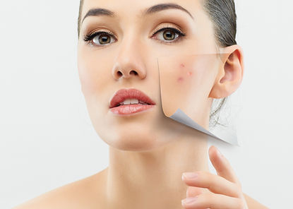 acne, psoríase, rosácea, manchas de pele