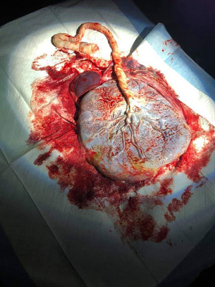 The amazing placenta