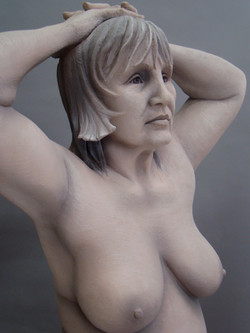 6Carole face and breast