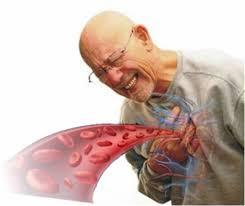 ¿Que es la insuficiencia cardiaca?