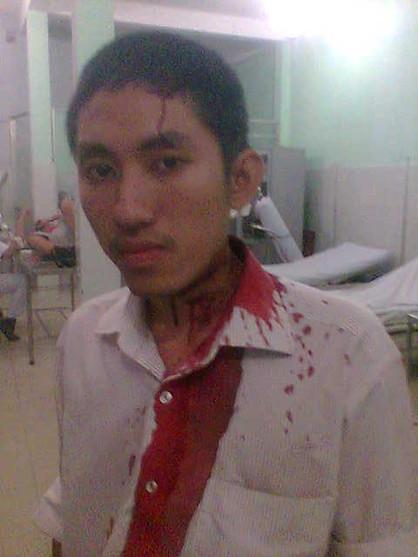 Linh Phan bị côn đồ tấn công