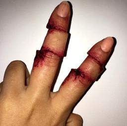 injury7.jpg