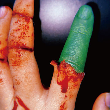 injury1.jpg