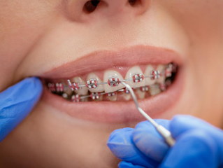 Braces Vs. Invisalign – Which One is Right For You