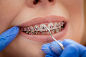professional dental services