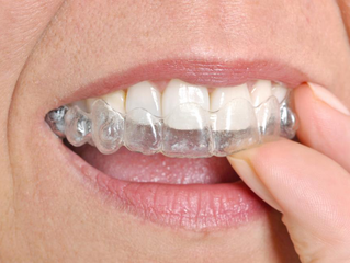 Invisalign – 6 Reasons to Consider This Dental Treatment