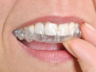 Can You Benefit From Invisalign Teeth Straightening?