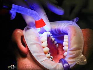 5 Emergency Dental Treatment Tips